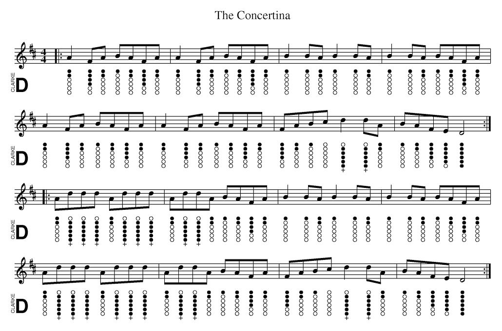 The Concertina